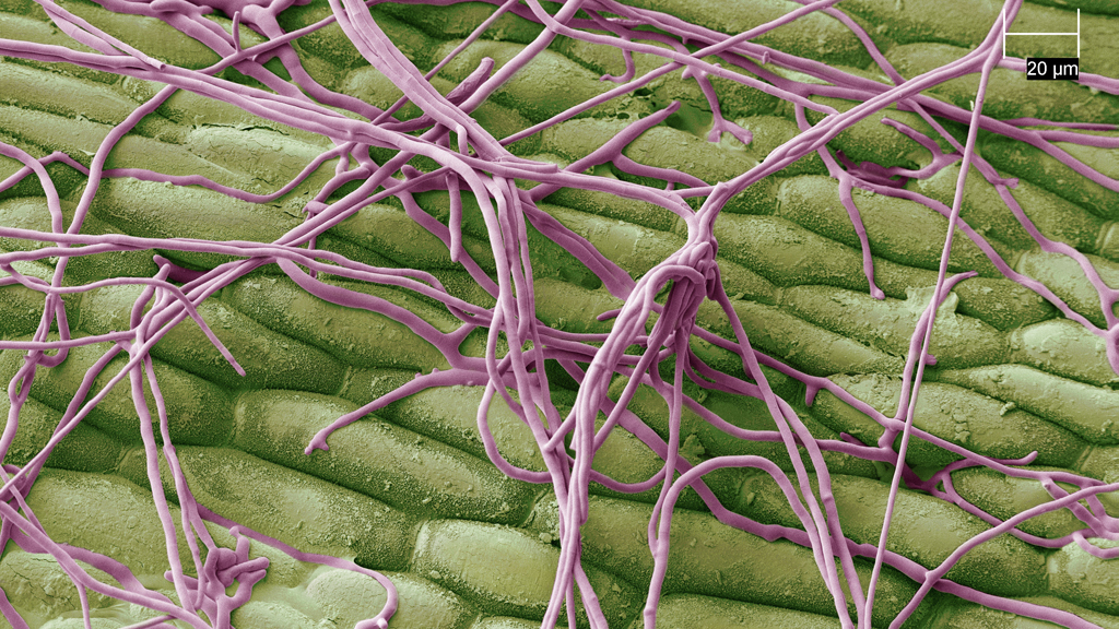 Disease hyphae on turf surface seeking entry points through stomata or leaf damage and gaps in contact fungicide coverage